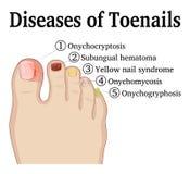Les maladies des ongles de pied illustration de vecteur