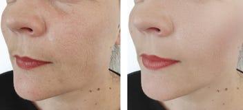 Les rides de femme font face au rajeunissement de vieillissement de retrait de thérapie de dermatologie de résultat avant et aprè photos stock