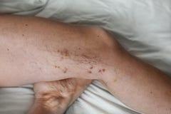 Les veines variqueuses de la maladie sur les jambes d'une femme images stock