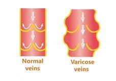 Les veines variqueuses et les veines normales Photo libre de droits