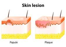 Lesión de piel libre illustration
