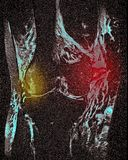 Lesión de rodilla, MRI imagenes de archivo