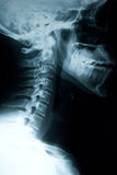 Lesión del cuello Imágenes de archivo libres de regalías