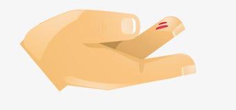 Lesión del dedo Fotos de archivo libres de regalías