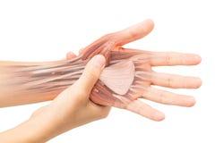 Lesión del músculo de la mano Imagen de archivo