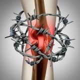 Lesión médica del cuerpo del dolor de la rodilla stock de ilustración