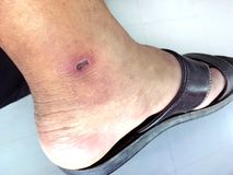Lesion scab dried on the epidermis skin ankle, lesion, dermatitis, dark spots of the skin legs, lesion scab on the skin, skin royalty free stock photography
