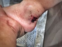 Lesion on skin Stock Photography