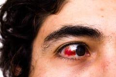 Lesione agli occhi Fotografia Stock Libera da Diritti