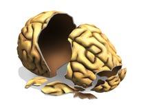 Lesione cerebrale Fotografia Stock