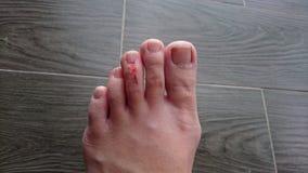 Lesione del dito del piede Fotografia Stock