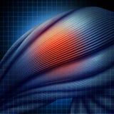 Lesione umana del muscolo Immagini Stock Libere da Diritti