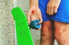 Lesiones en deportes extremos Fotografía de archivo libre de regalías