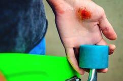 Lesiones en deportes extremos Imagenes de archivo