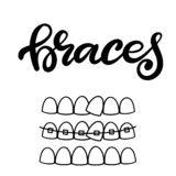 Vector lettering illustration about orthodontic treatment and dental healthcare with the image of braces on teeth. EPS10. Lettering illustration about dental vector illustration