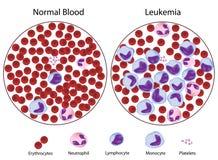 Leucémico contra sangre normal Imágenes de archivo libres de regalías