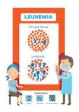 leucémie illustration stock