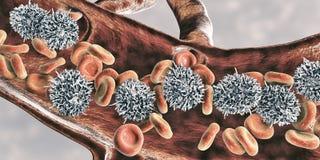 Leucemia de pilha peludo ilustração do vetor
