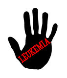 Leucemia di Handprint Immagini Stock Libere da Diritti