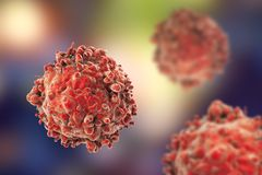 Leukaemia white blood cells. 3D illustration. Cancer cells Stock Images