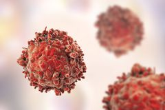 Leukaemia white blood cells. 3D illustration. Cancer cells Stock Photography