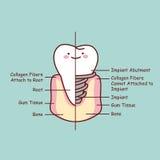 Leuke implant van de beeldverhaaltand anatomie royalty-vrije illustratie