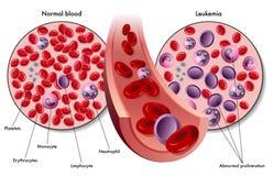 leukemia Royaltyfria Foton