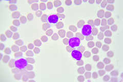 Leukemia cells. In blood smear Royalty Free Stock Photos