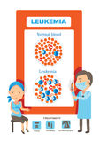Leukemia. Medical tests for patients with leukemia and blood disorders, cancer diagram  illustration Royalty Free Stock Photo