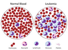 Leukemic tegenover normaal bloed Royalty-vrije Stock Afbeeldingen