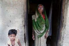 Leute des Jharia Kohlenbergwerkbereiches in Indien