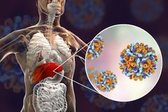 Lever met Hepatitisb besmetting en close-upmening van Hepatitisb Virussen royalty-vrije illustratie