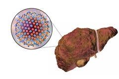 Lever met Hepatitisc besmetting royalty-vrije illustratie
