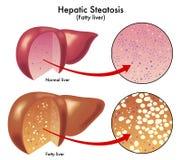 Lever steatosis stock illustratie