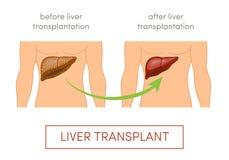 Levertransplantationbegrepp stock illustrationer