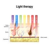 Lichttherapie, Phototherapie oder Laser-Therapie Tiefe von penetrati lizenzfreie abbildung