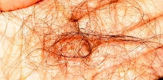 Ließ einen Block des Haares fallen Haarausfall Makro Stockfotografie