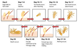 Life cycle of head lice. The life cycle of head lice showing eggs on hair shaft, hatching, moulting, mating and death of lice in human hair Royalty Free Stock Photos