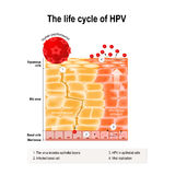 Life cycle of hpv. In the human epithelium. hpv - Human papillomavirus infection which causes warts and cervical cancer carcinoma of Cervix - Malignant neoplasm Stock Images