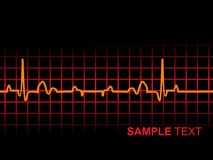 Lifeline in an electrocardiogram, illustration Royalty Free Stock Photography