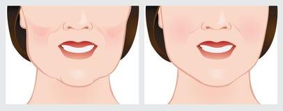 Lifting facial usando llenadores cutáneos Fotografía de archivo