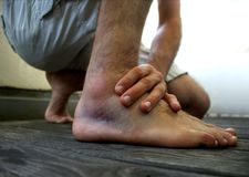 Ligament strain/ rupture after rolling my ankle. Swollen ankle with hematoma after a supination trauma while playing football. cooling with ice relieves the pain stock images