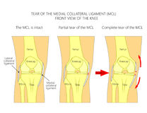 Ligaments of the knee_Tear of the medial collateral ligament. Vector illustration anatomy of a knee joint with healthy ligaments and sprain, tear or rupture of Royalty Free Stock Photo