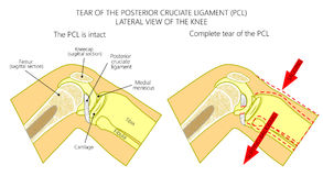 Ligaments of the knee_Torn posterior cruciate ligament. Vector illustration anatomy of a knee joint with healthy and torn posterior cruciate ligament. Side or Royalty Free Stock Photo