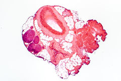 Light micrograph of a muscular artery. Vein and nerves. Artery has thicker wall than vein. Light microscopy, hematoxylin and eosin stain, magnification 40x stock photo