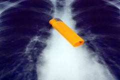 Lighter and x-ray Stock Photography