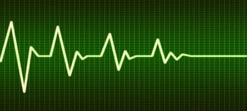 Ligne extrémité de battement de coeur de la vie Image stock