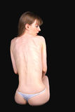 Lijdend aan anorexie meisje Stock Fotografie