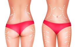 Lijnen, die chirurgie op vrouwelijk lichaam tonen Stock Afbeeldingen