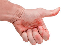 Like a hand stained in blood. on  white background Stock Image